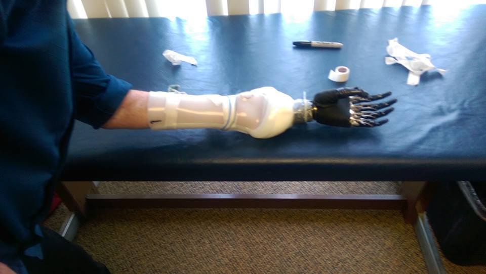 Cliff Golby's be bionic mechanical arm